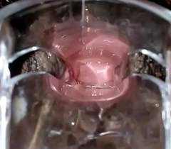 SLIM INDIAN Murk GIRL CERVIX SPECULUM CHECK VAGINAL OPENING